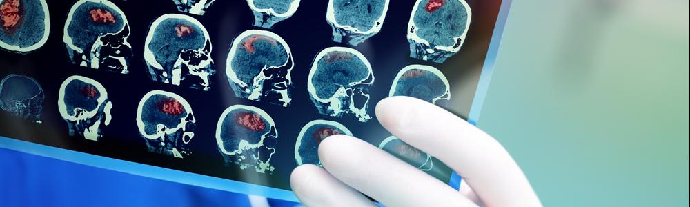 brain-scan-exam
