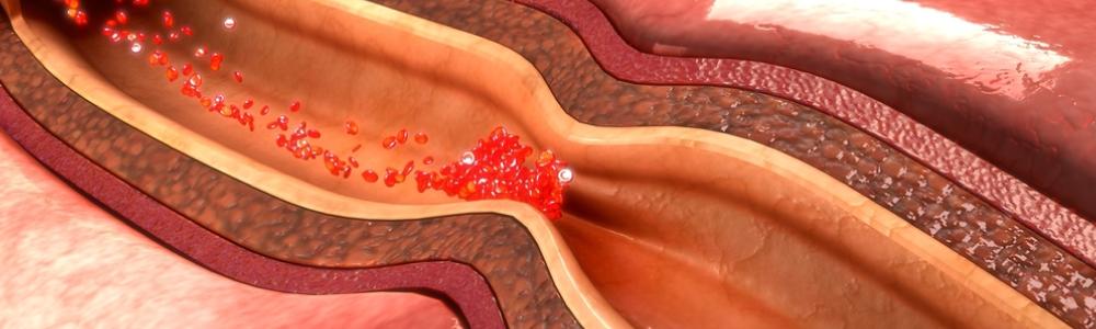clogged-artery