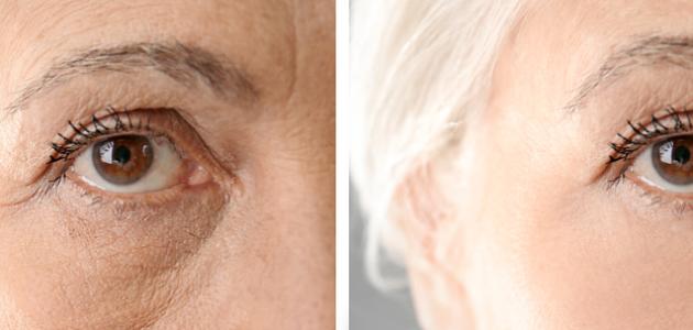 skin-wrinkles-smooth